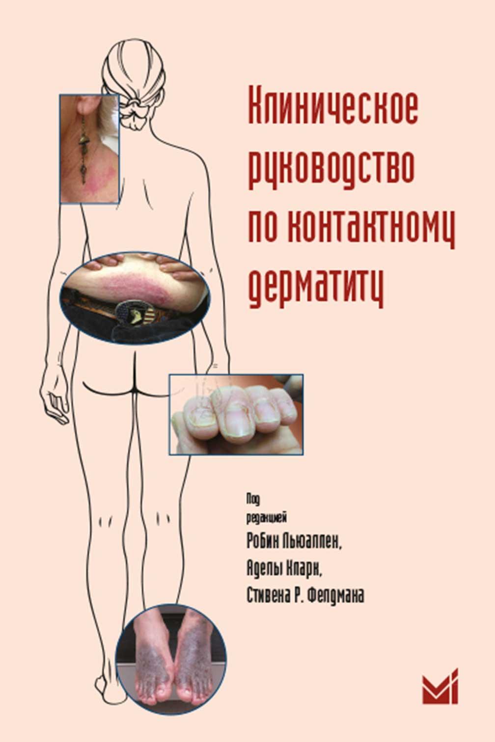 Клиническое руководство по контактному дерматиту