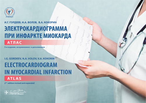 Электрокардиограмма при инфаркте миокарда : атлас на рус. и англ. яз. = Electrocardiogram in myocardial infarction : atlas in russian and english languages . — 2-е изд., испр. и доп. (+ ЭКГ-линейка)